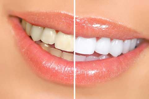 Clareamento dental em Joinville