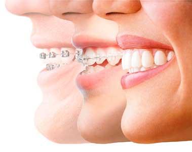 Ortodontia em Joinville