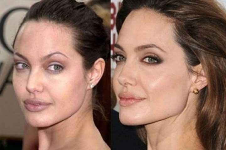 Angelina Jolie bichectomia
