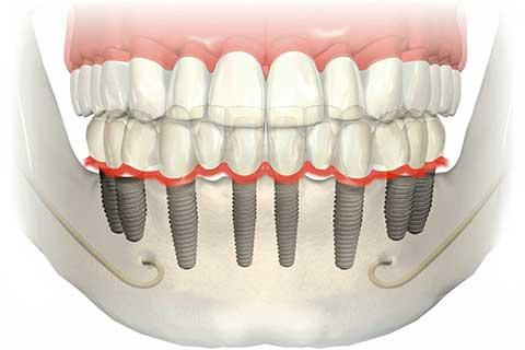 Implante dental com segurança