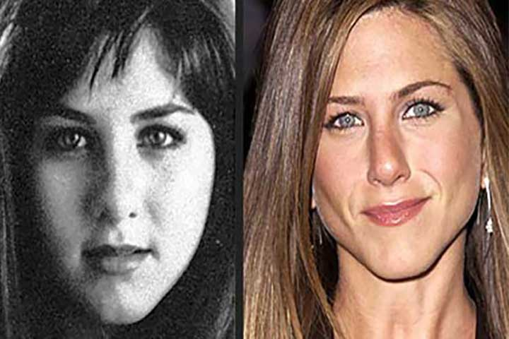 Jennifer Aniston também aderiu a cirurgia de bichectomia
