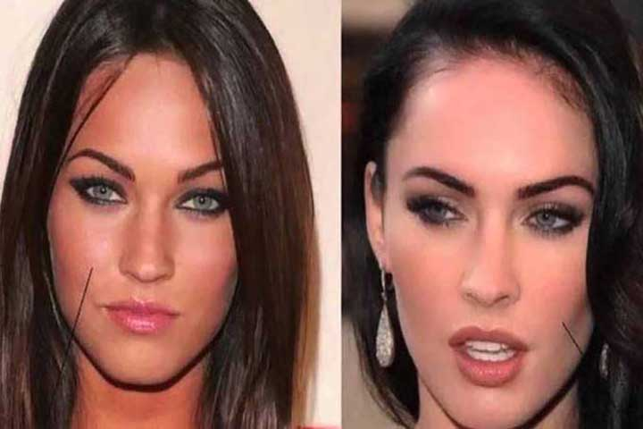 Megan Fox bichectomia