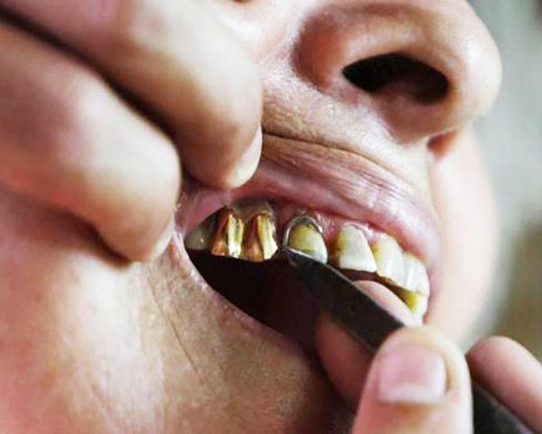 Algumas pessoas afirmam que receberam os dentes de ouro de Deus.