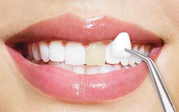Quanto tempo dura as lentes de contato dentais?