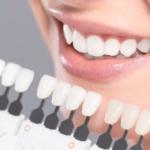 Coisas que você precisa saber sobre as lentes de contato dentais